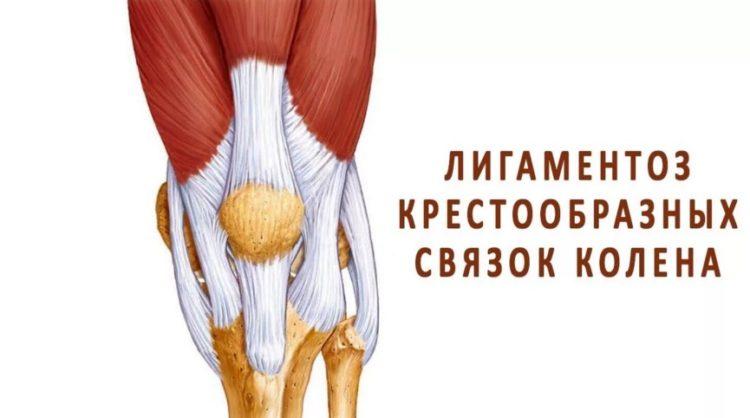Лигаментоз четырехглавой мышцы бедра