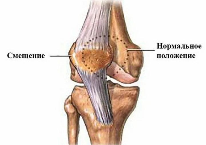 Вывих и смещение коленного сустава, коленной чашечки